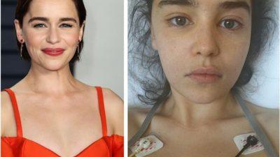 Эмилия Кларк рассказывает о старении, красоте и пластической хирургии